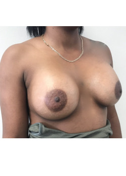 Breast Augmentation Patient 24