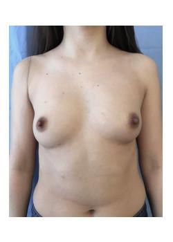 Breast Augmentation Patient 34