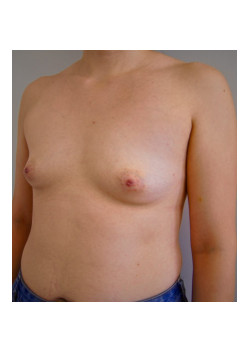 Breast Augmentation Patient 39