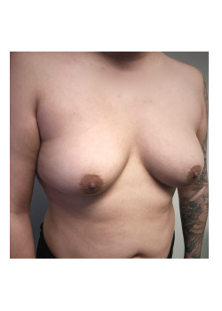 Breast Augmentation Patient 53