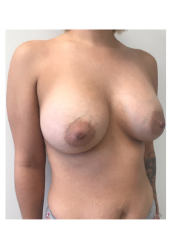 Breast Augmentation Patient 55
