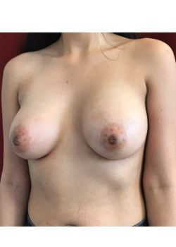 Breast Augmentation Patient 72