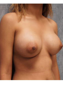 Breast Augmentation Patient 73