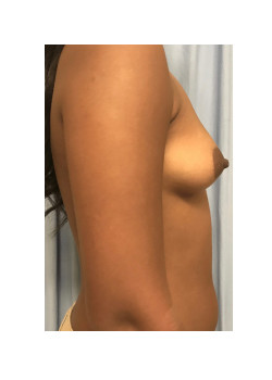 Breast Augmentation Patient 76