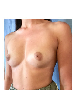 Breast Augmentation Patient 77