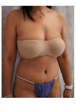 Full Abdominoplasty, Patient 11