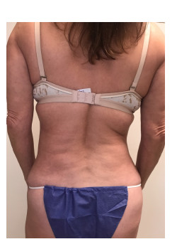 Full Abdominoplasty, Patient 18