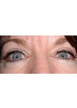 Blepharoplasty/Eyelift, Patient 5